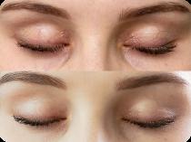 Efekt przed i po (plastyka powiek))