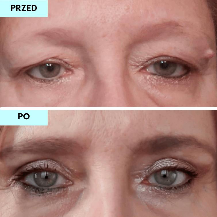 efekt przed i po